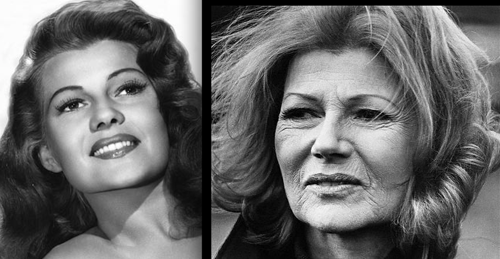 Rita Hayworth Hairline Before After Rita hayworth - actress