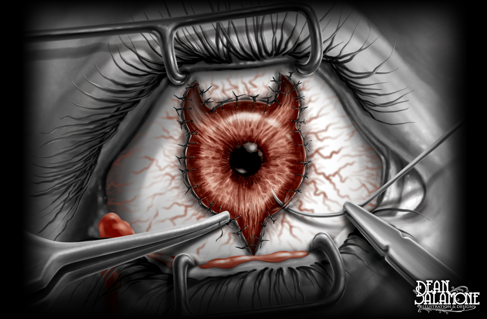 IllustrationPage-EyeSurgery.jpg