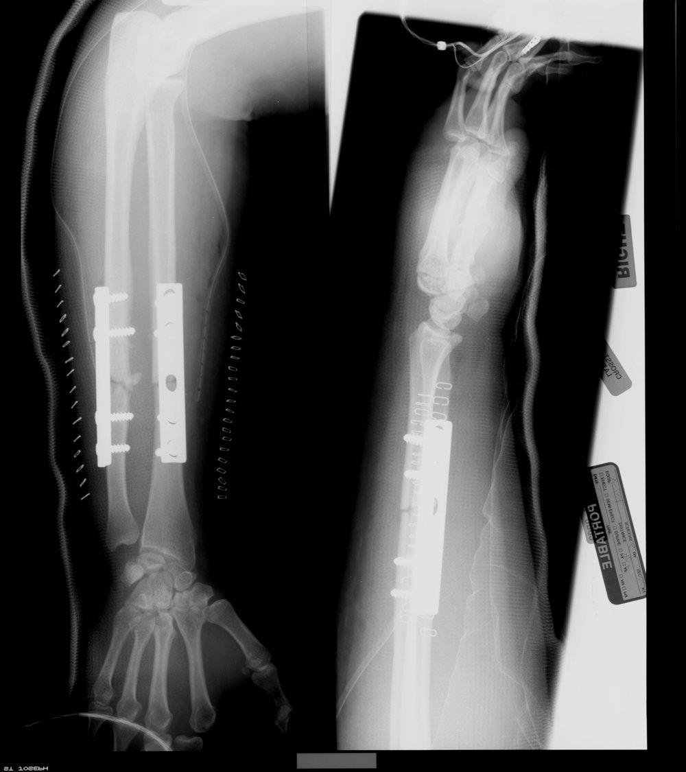 Arm x-ray.jpg