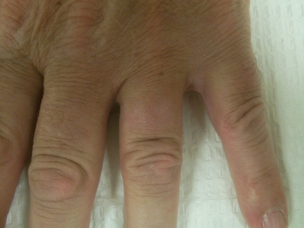 Reno Tattoo Removal finger after
