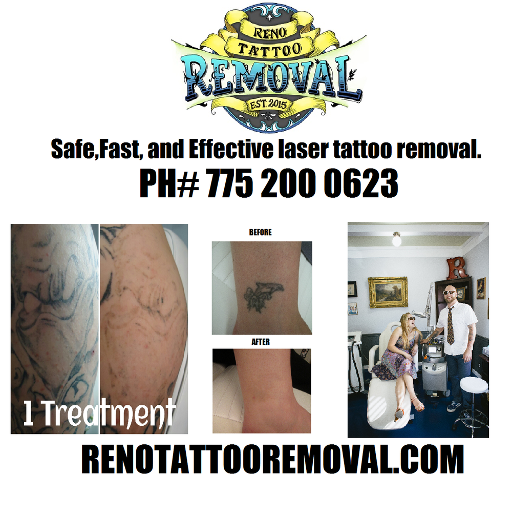Reno Tattoo Removal promo