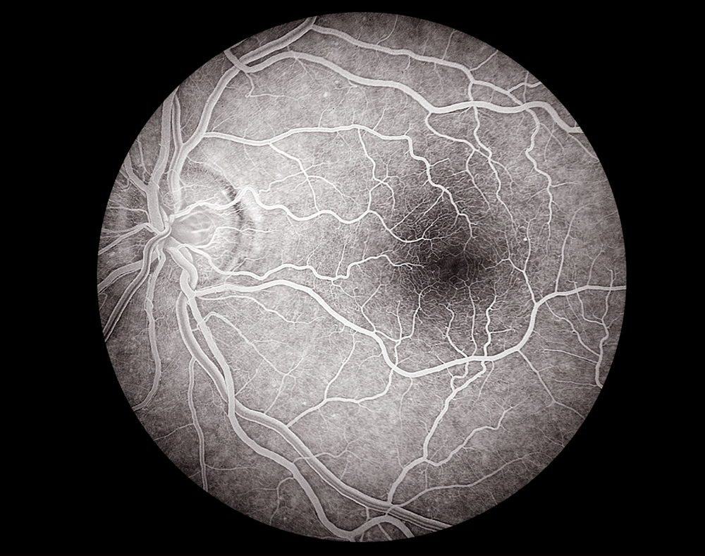 © Mark Maio 30 Degree View Left Eye Optic Nerve and Fovea Angiogram.jpg