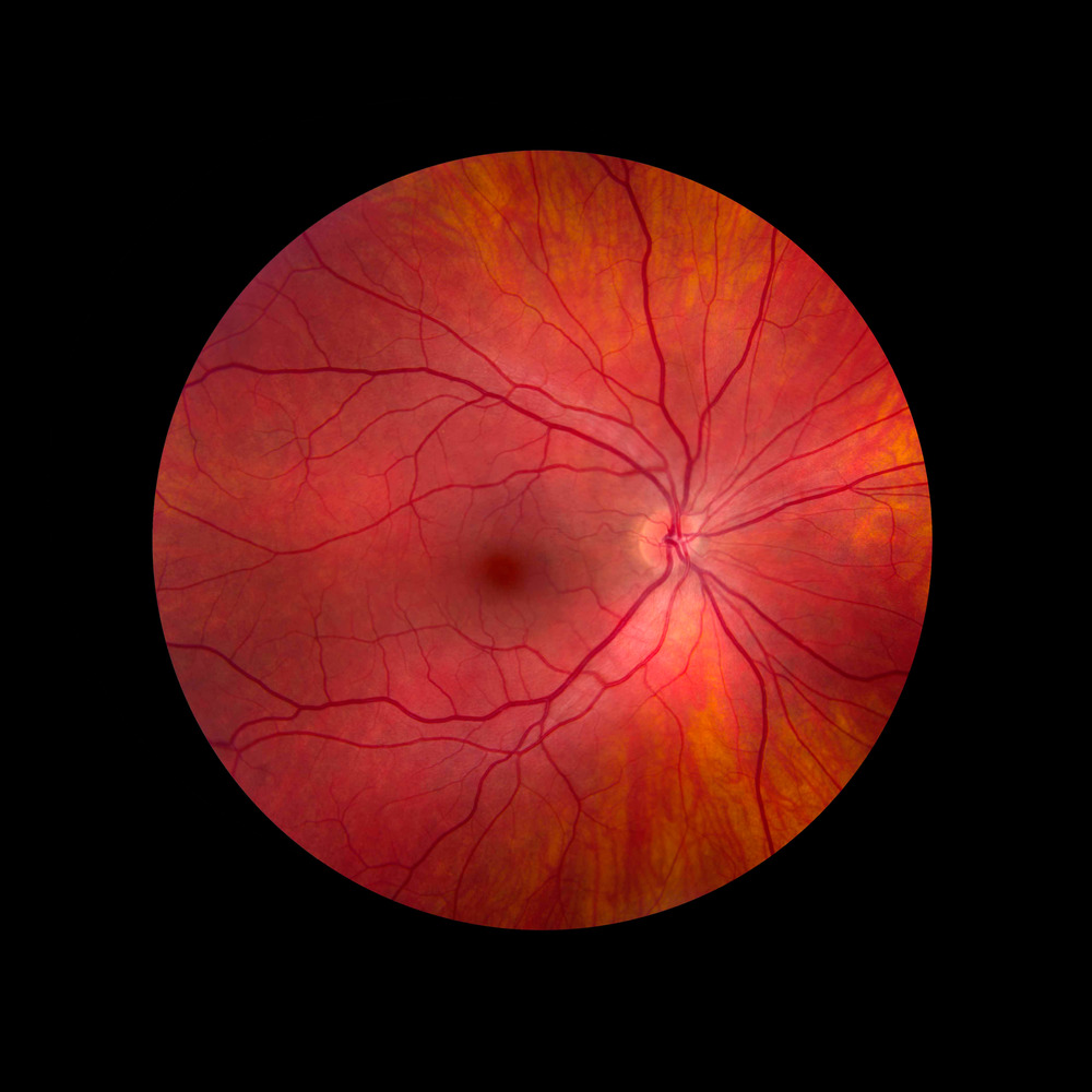 © Mark Maio Retina Right Eye.jpg