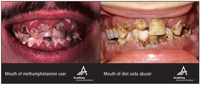 LEFT: Mouth of a Metamphetamine abuser RIGHT: Mouth of a diet soda abuser