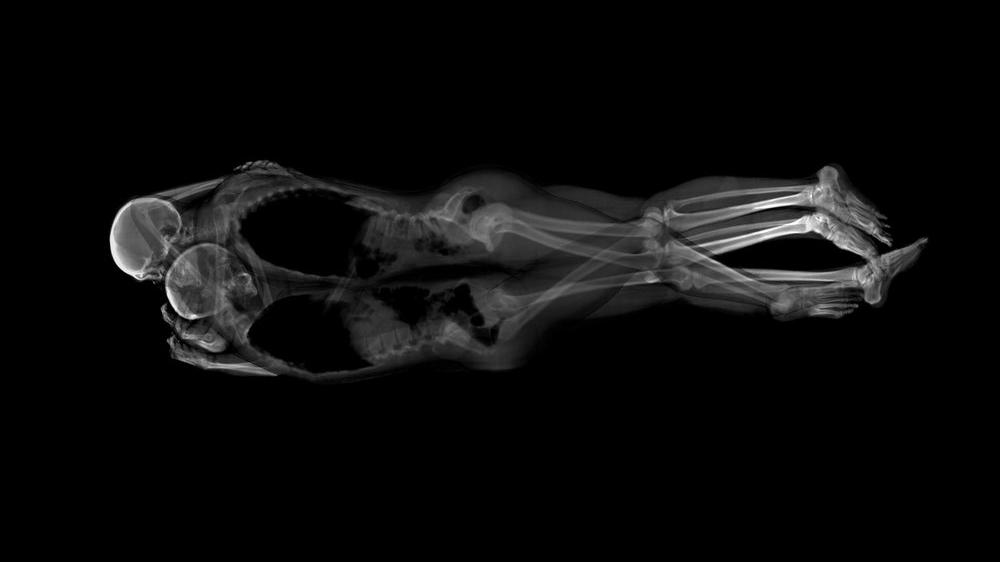 MCJDA-x-ray-portrait-2.jpg