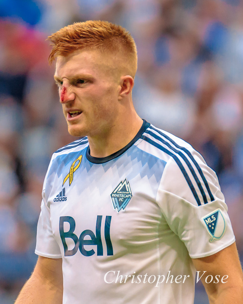 Tim Parker literally bled for Vancouver the last time he played against New York
