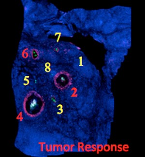 Figure 3.  A thin sarcoma tumor slice is stained with a marker to show dying cancer cells. Eight drugs were injected. Injection sites 2, 4, and 6 induced the greatest tumor cell death, as shown by the red cellular staining.