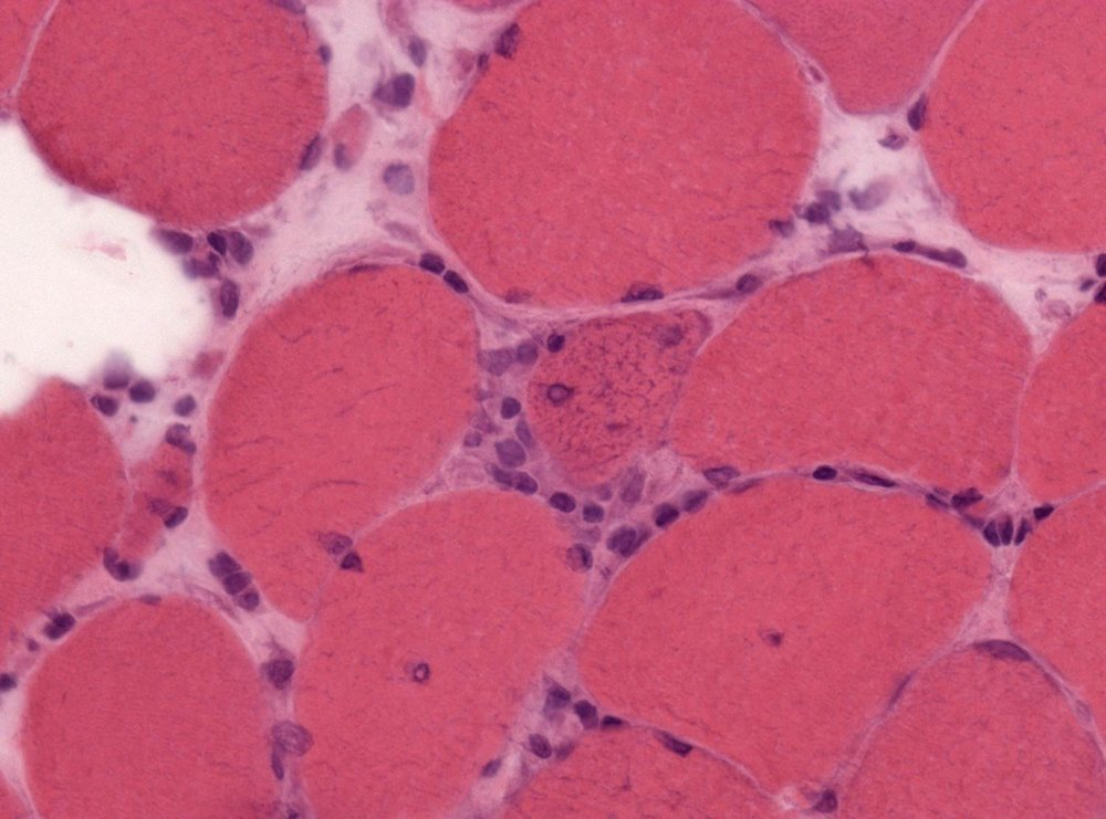 Neuropathology_case_XII_02.jpg