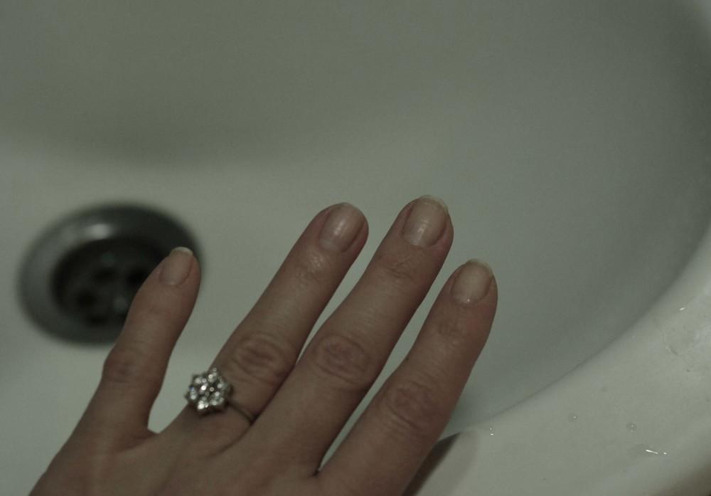 ingen røde fingerspidser eller grimme neglebånd