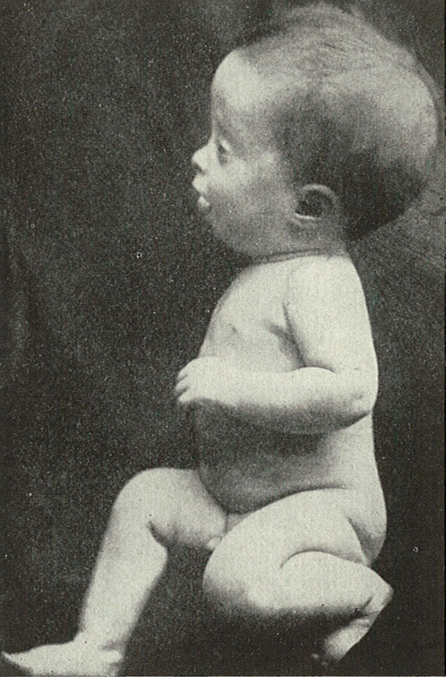 Baby suffering from hydro-cephalus.