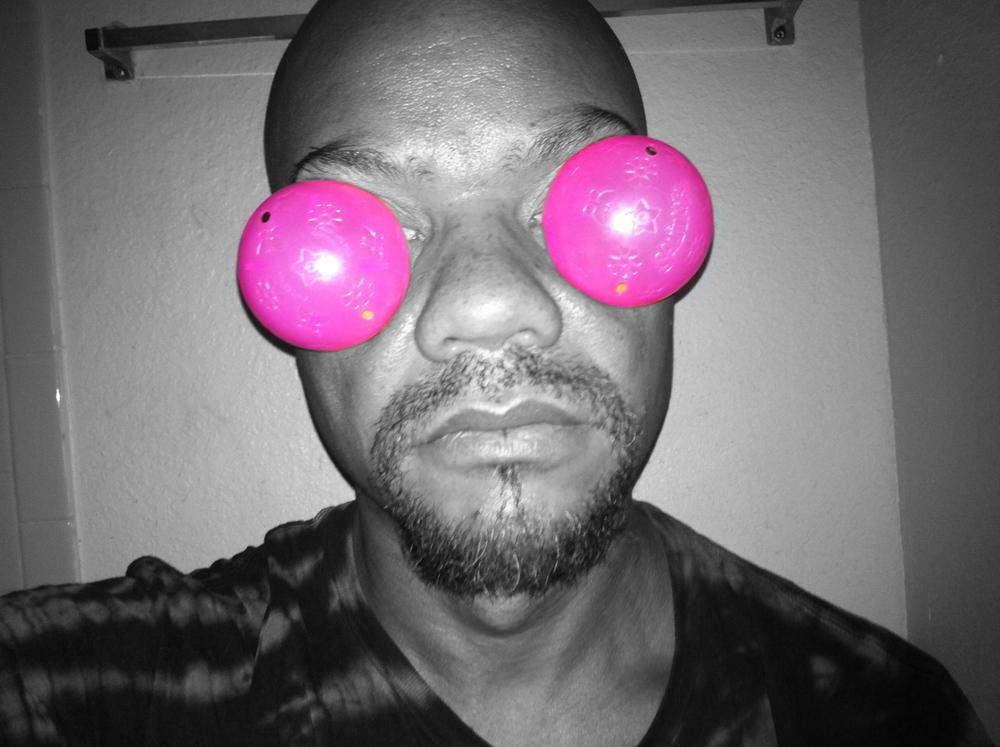 I had pink eye