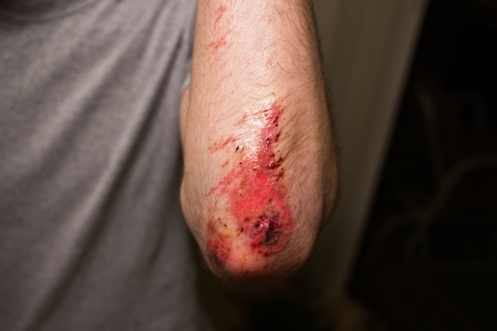 Brian goes bump on his bike. Subdermal fat visible.