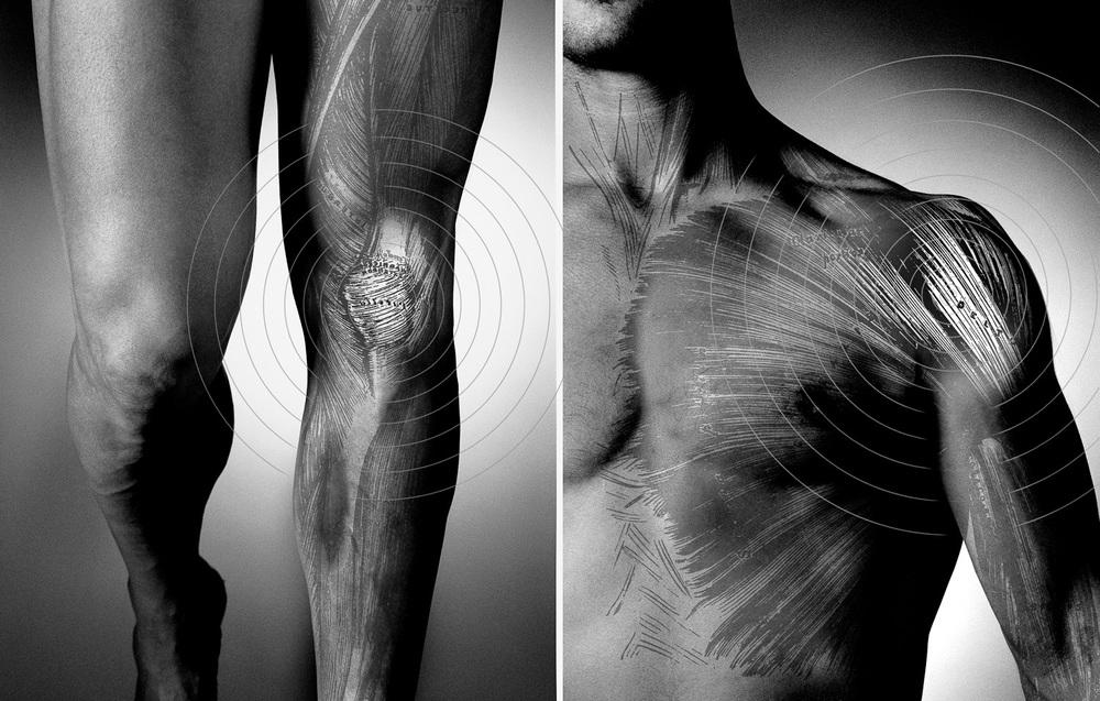 ACC - body- physio