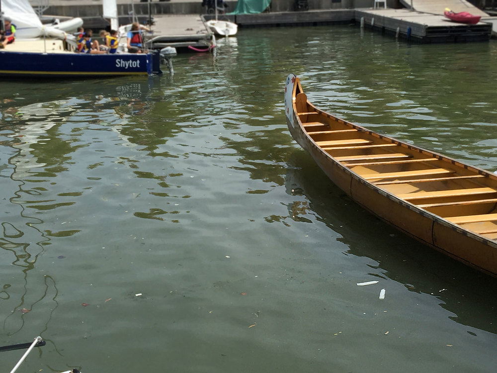 Two condoms seen floating side by side in Toronto's inner harbour. (Photo by Lake Ontario Waterkeeper)