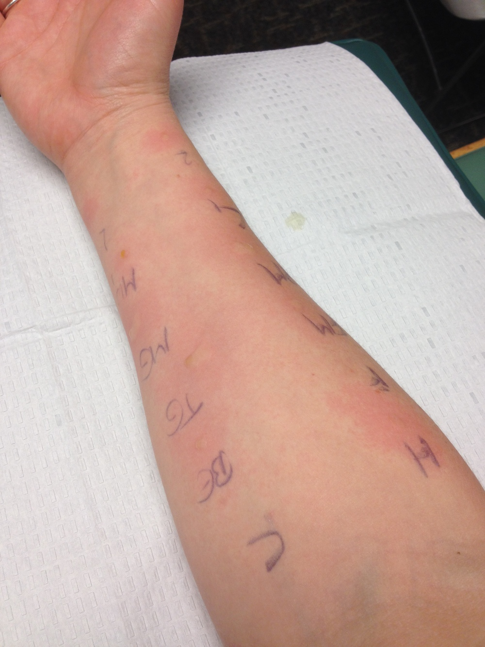 My weird arm during the allergy test