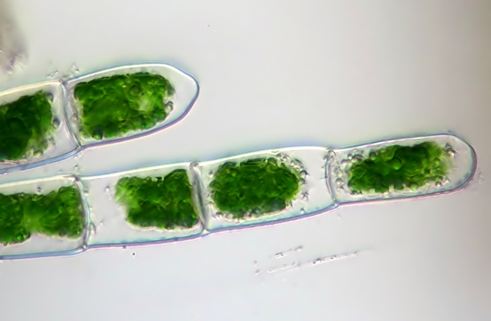 Colonial Green Algae