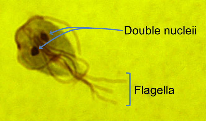 Giardia lambila  is an intestinal parasite of humans and other mammals. It is a protist known as a diplomonad in the Supergroup Excavata, Subgroup Metamonada. This subgroup is defined by the presence of two nucleii, multiple flagella, and modified mitochondria that are not capable of undergoing the electron transport chain. There members of the Metamonada can grow in anaerobic (lacking oxygen) environments.  Photo: Josef Reischig 2014.