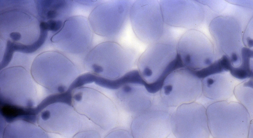 The hyphal (feeding) cells of a parasitic fungi are stained dark purple.