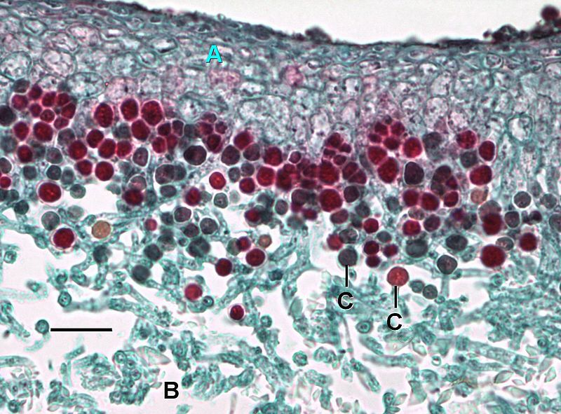 A transverse section of a lichen. A=Fungal layer (upper cortex), B=Medulla, C=Algal cells.