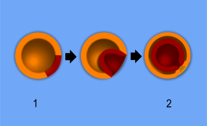 Gastrulation of a diploblast.     The formation of germ layers from a (1) blastula to a (2) gastrula. Some of the ectoderm cells (orange) move inward forming the endoderm (red).