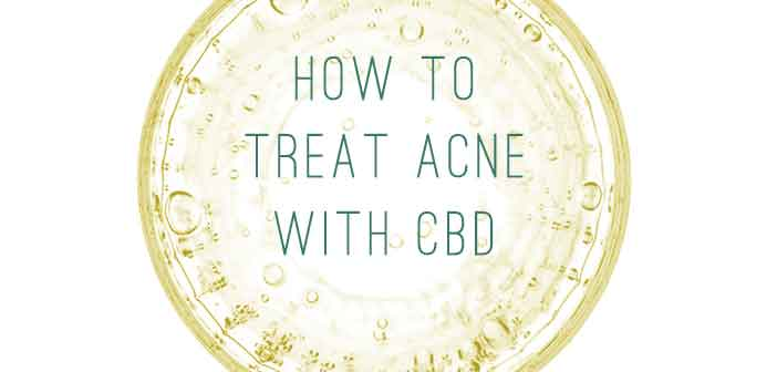 How to Treat Acne with CBD | Marijuana.com