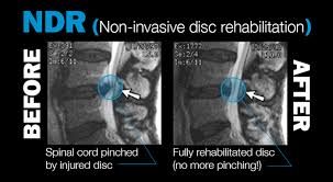bulging & herniated disc — ., Human Body