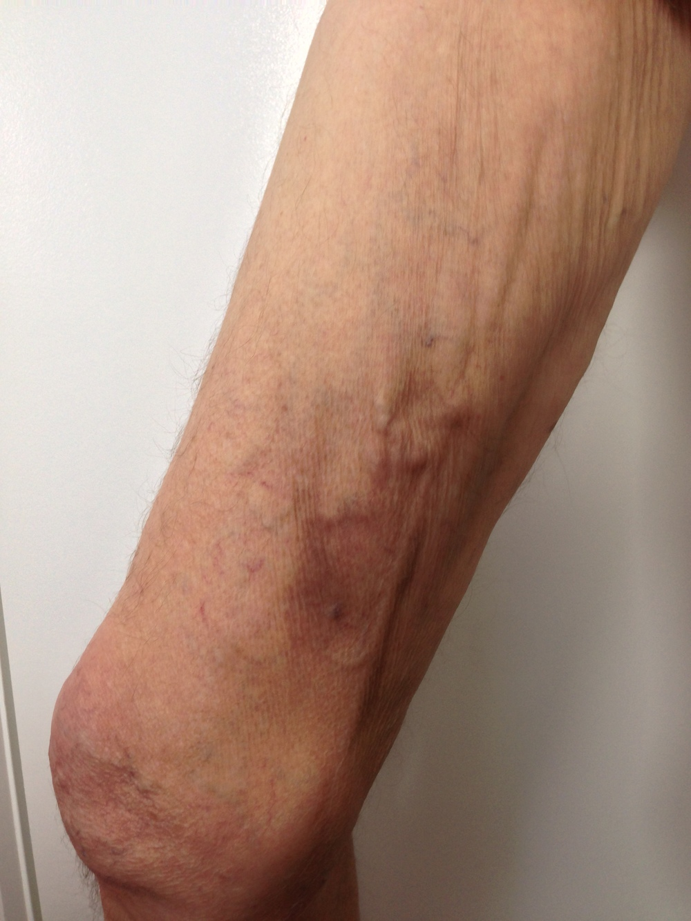 Treatment: EndoVenous Laser Ablation and Ultrasound Guided Sclerotherapy. Results at 3 months.
