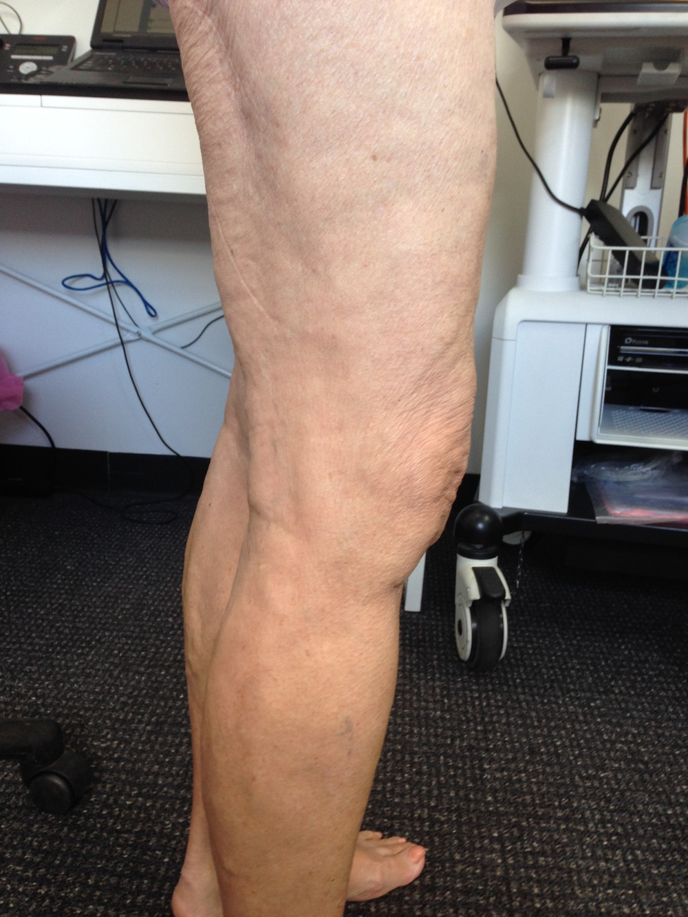 Treatment: Ultrasound Guided Sclerotherapy. Results at 6 months.