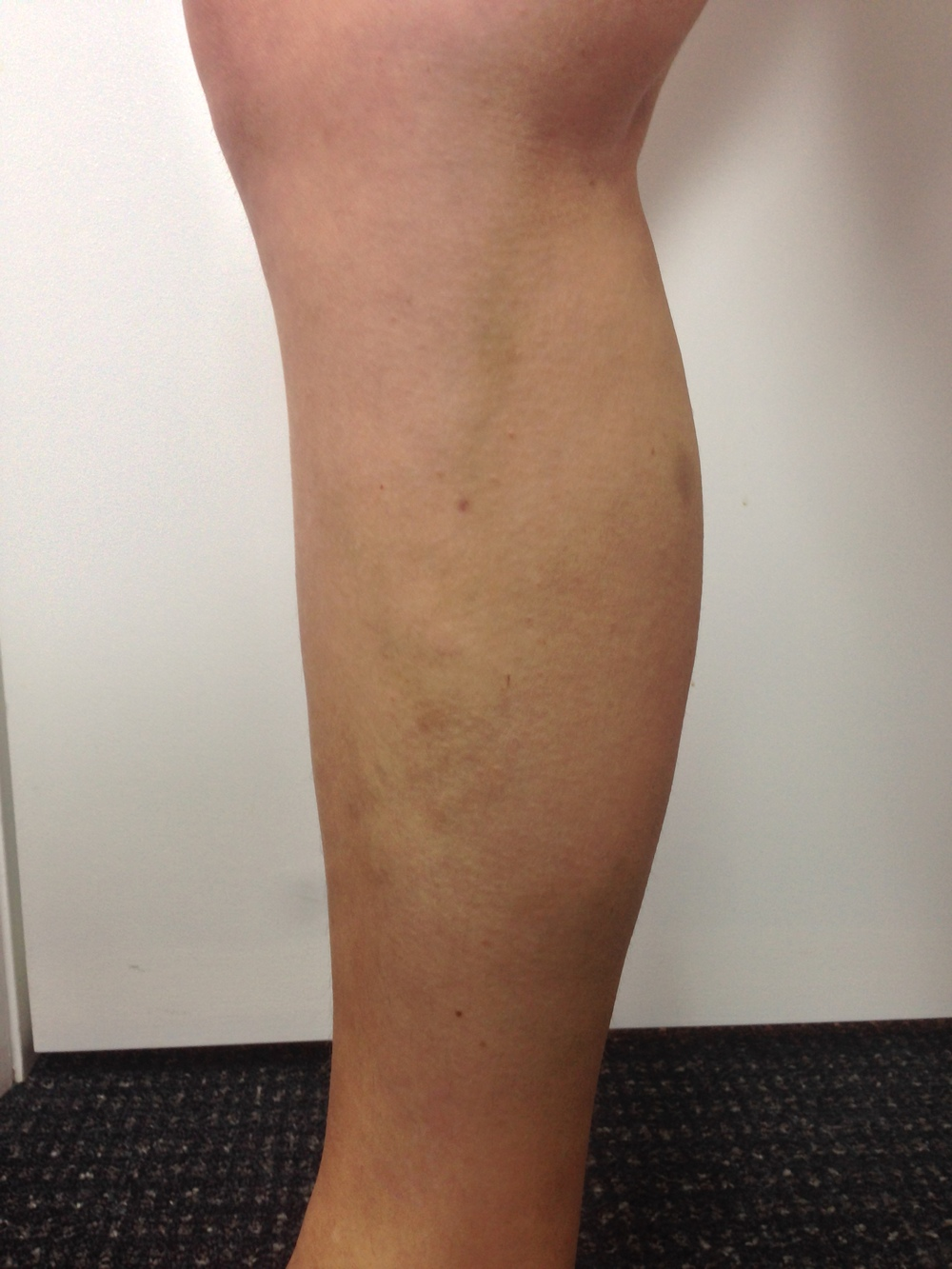 Treatment: EndoVenous Laser Ablation and Ultrasound Guided Sclerotherapy. Results at 6 months.
