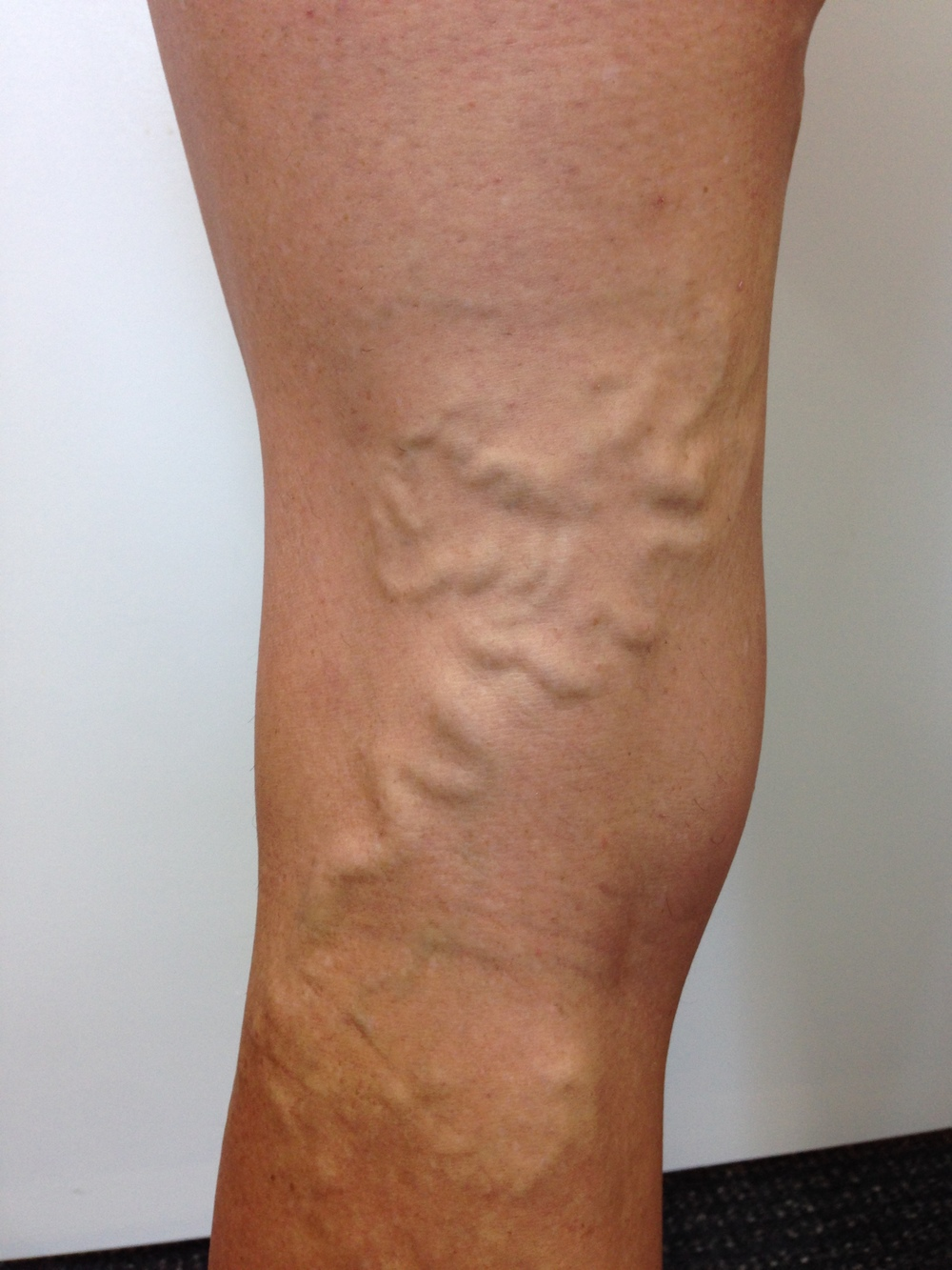 Patient presented with Varicose Veins. Female, 43 years.