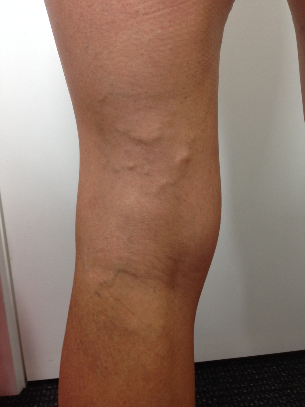 Treatment: Ultrasound Guided Sclerotherapy. Results at 4 months.