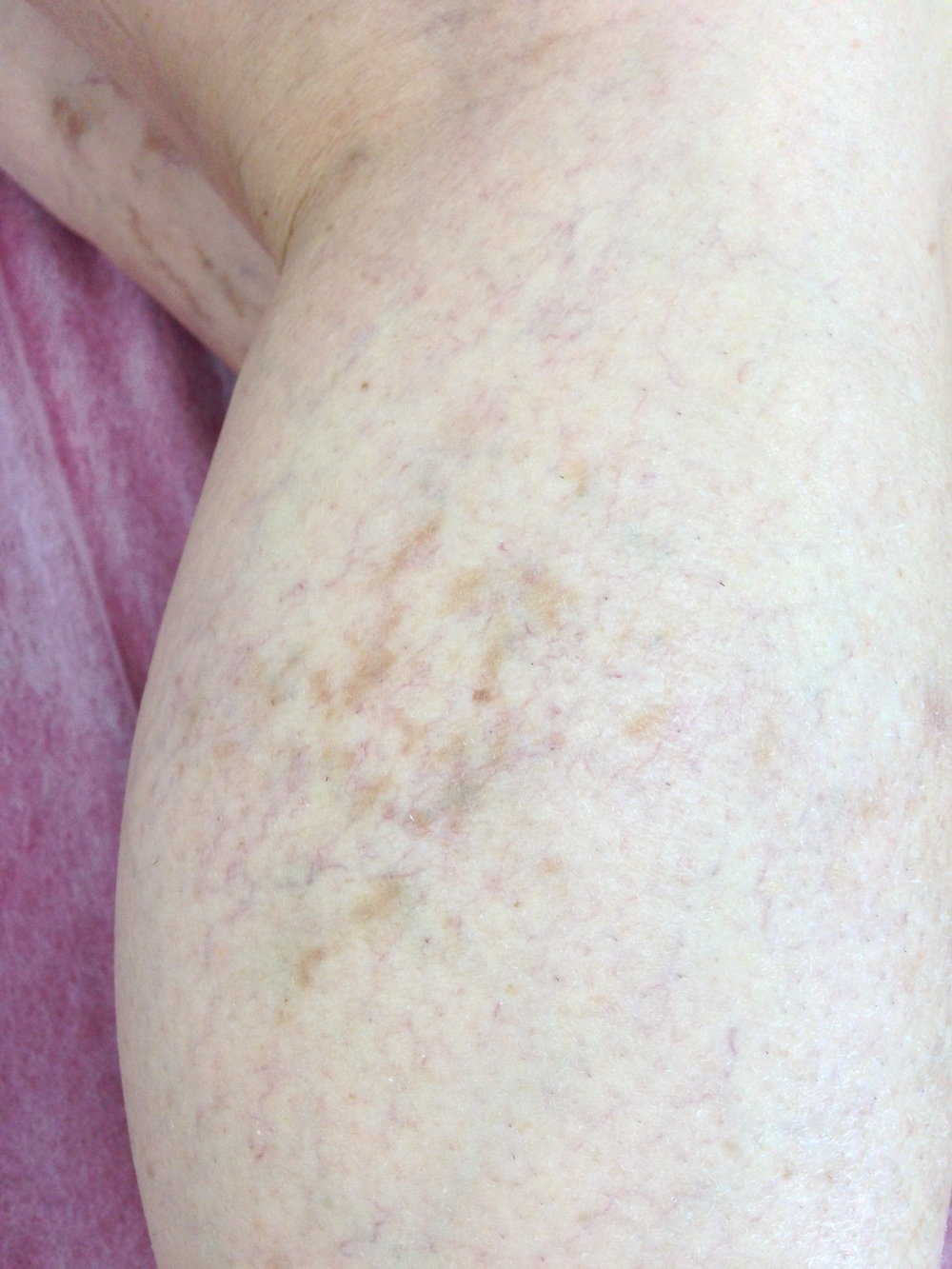 Treatment: Bilateral Sclerotherapy. Results at 3 months.