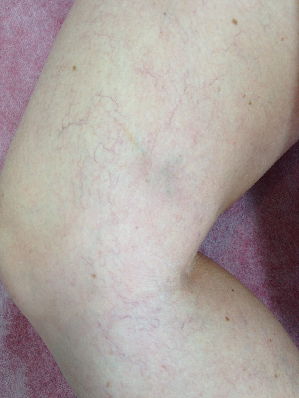 Treatment: Bilateral Sclerotherapy. Results at 3 months, following treatment 3 of 4.