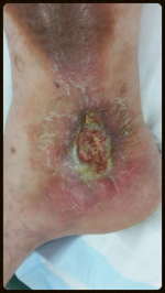 Ulcer in a 38 year old Ipswich man with varicose veins