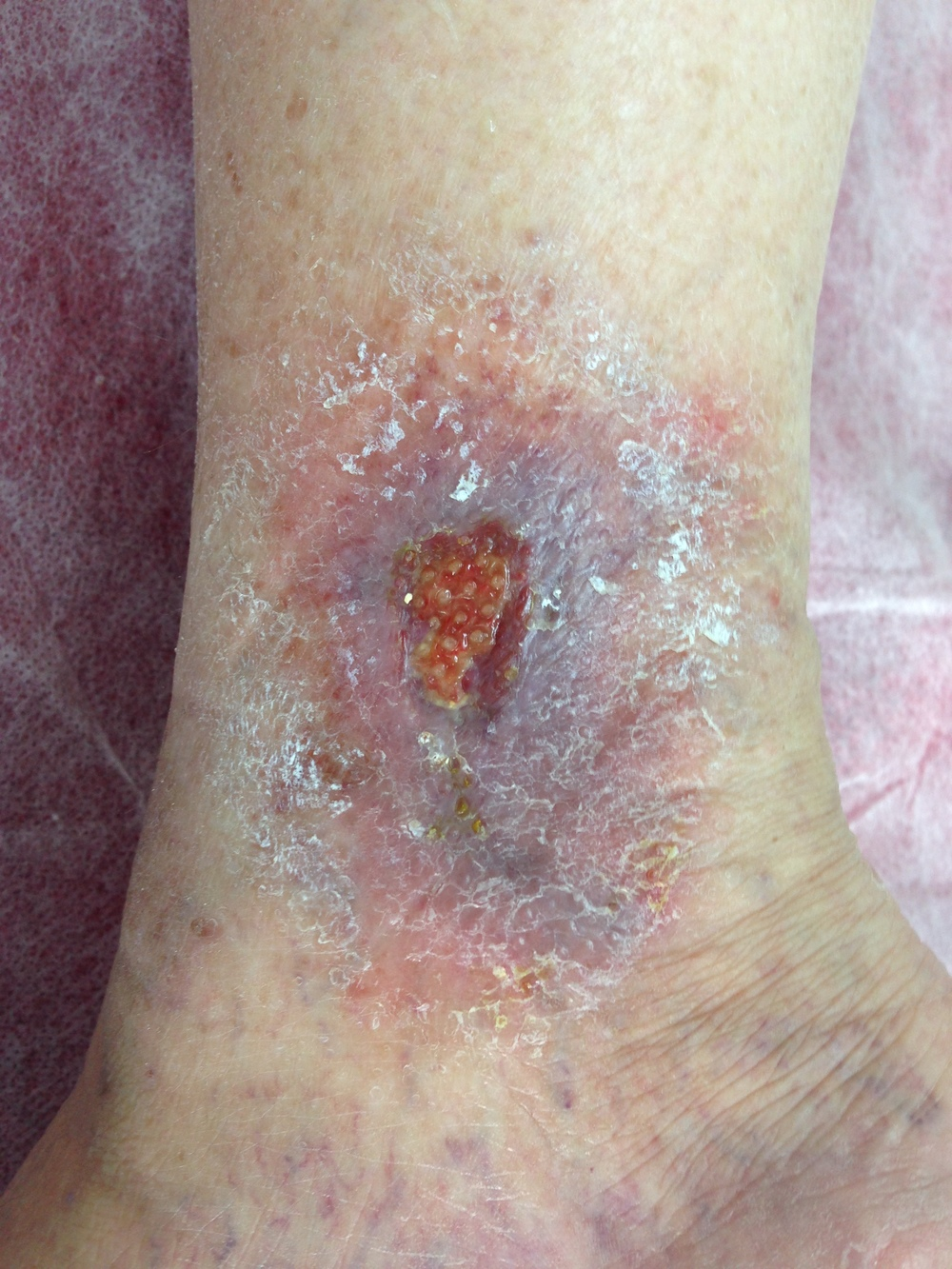 Venous Ulcer - Brisbane