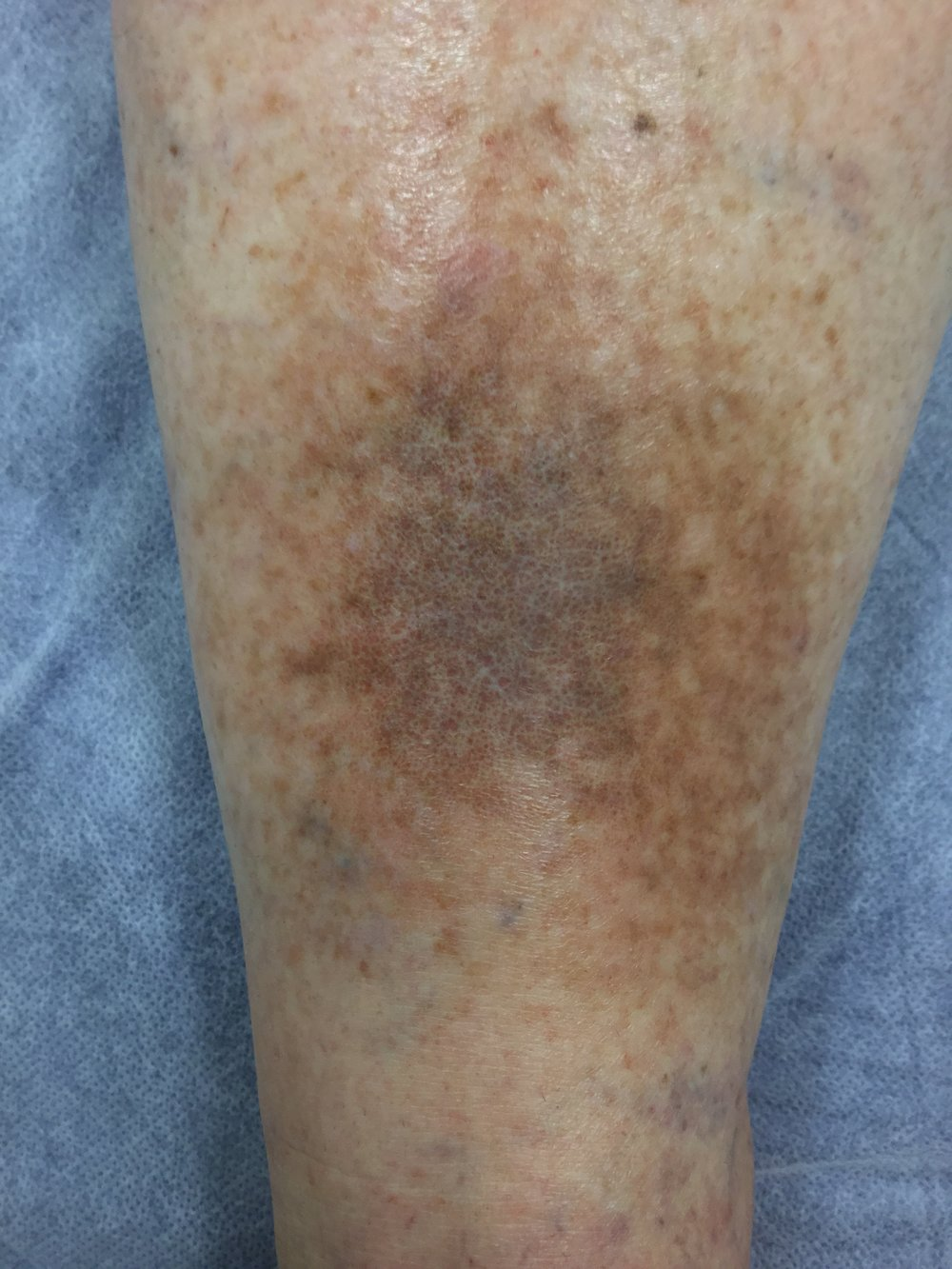 Lipodermatosclerosis due to untreated Varicose Veins.