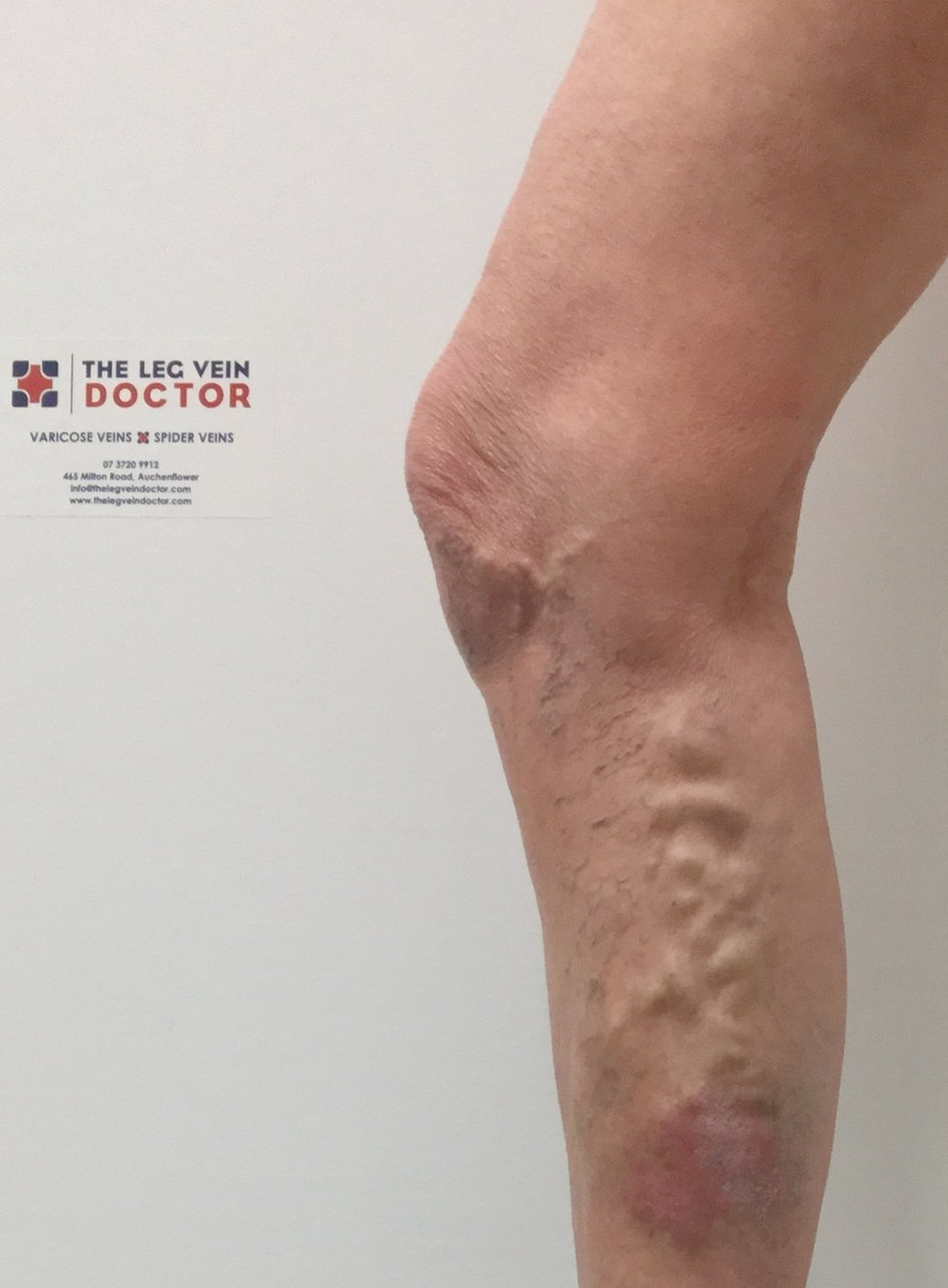 Varicose Veins on a patient at The Leg Vein Doctor.