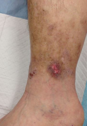 Venous ulcer on left ankle of 55 year old male.