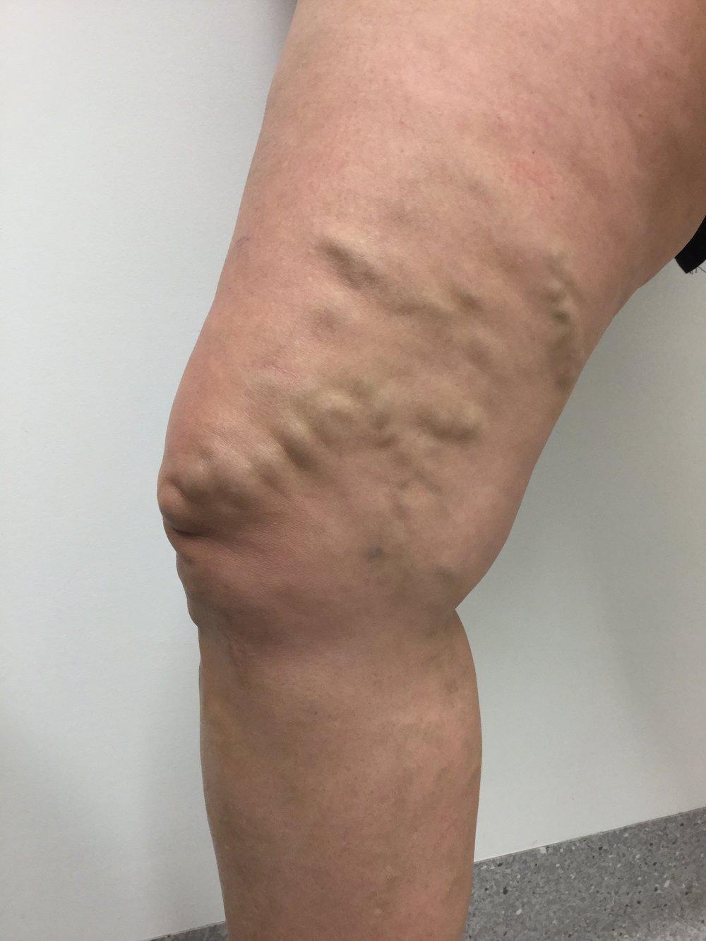 Spider Vein Treatment Brisbane Results The Leg Vein