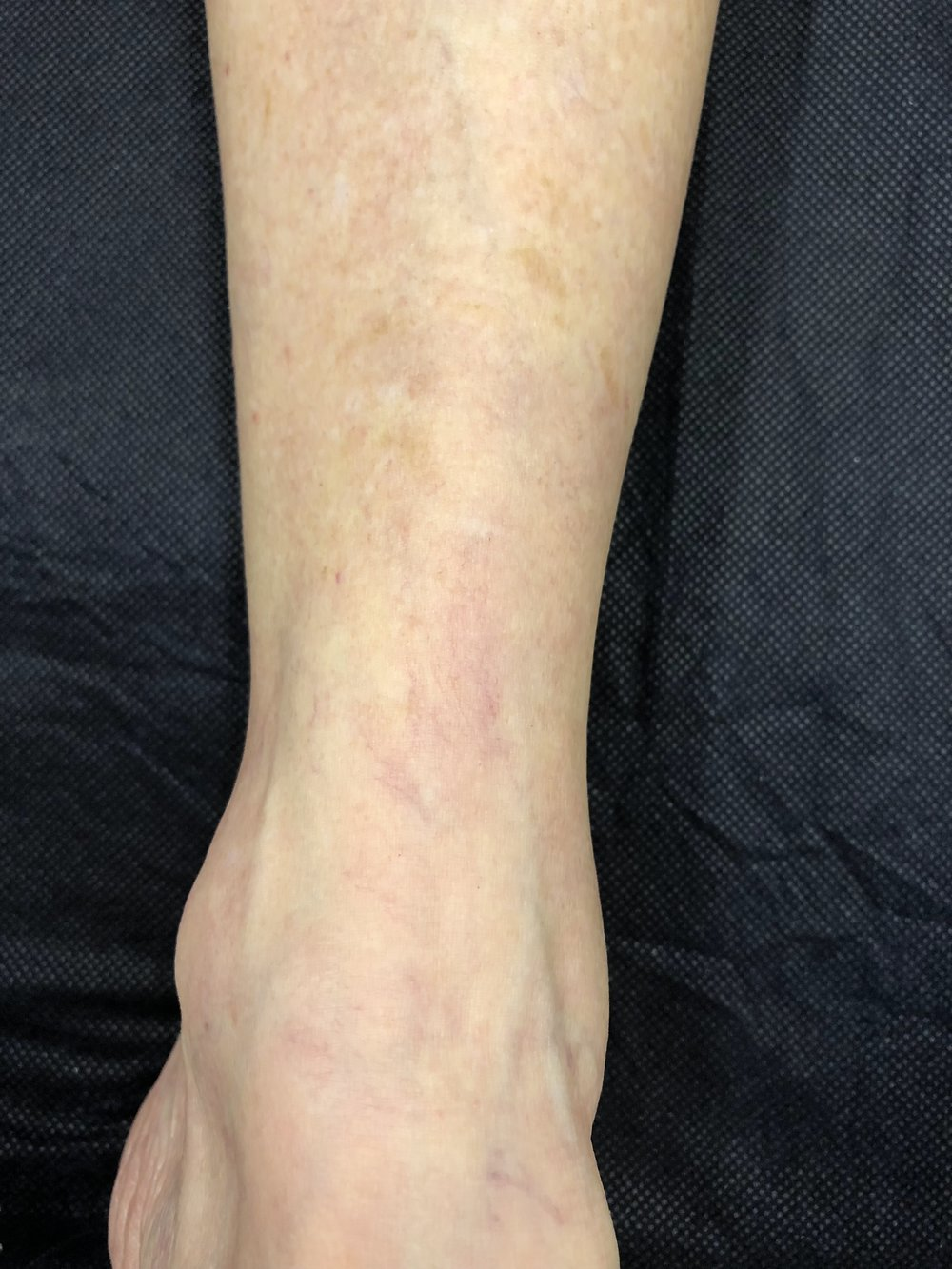 After - 3 months. Sclerotherapy 2 treatments