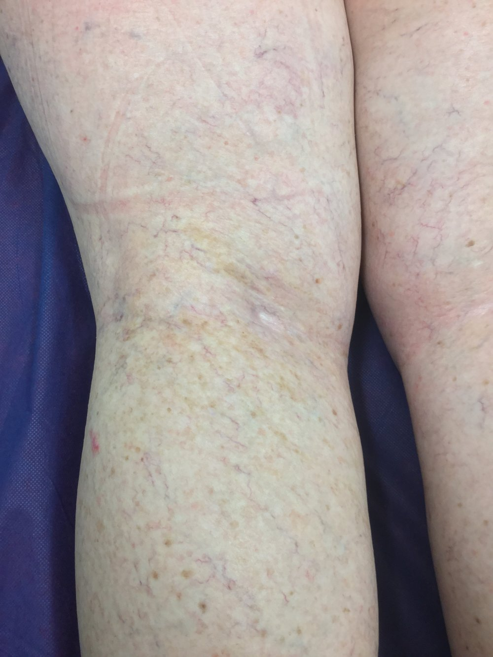 After. 6 Months Sclerotherapy 4 sessions.