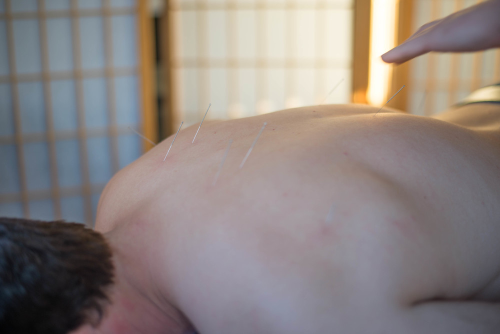 Hair-thin acupuncture needles