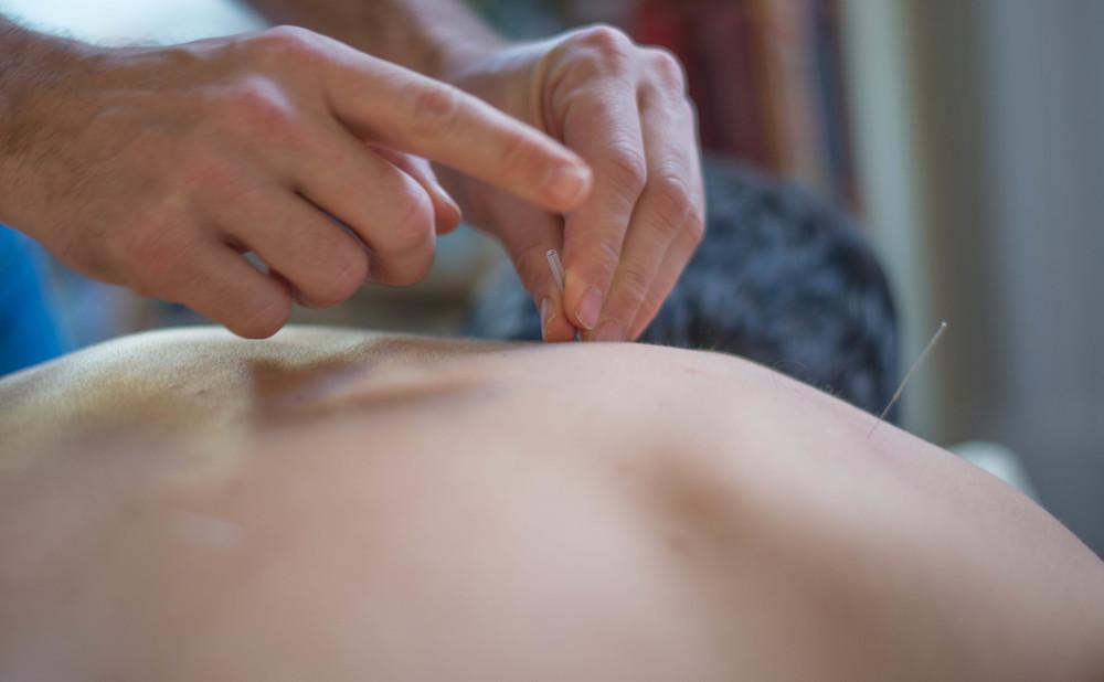 acupuncture-4.jpg