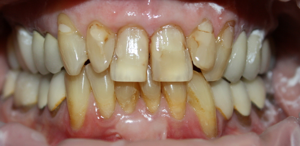 Before all ceramic crowns