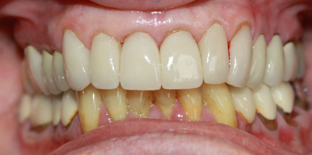 after all ceramic crowns
