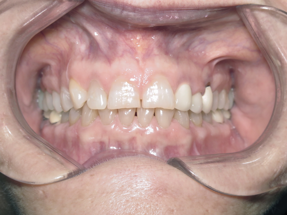 Before Cosmetic Composite Veneers