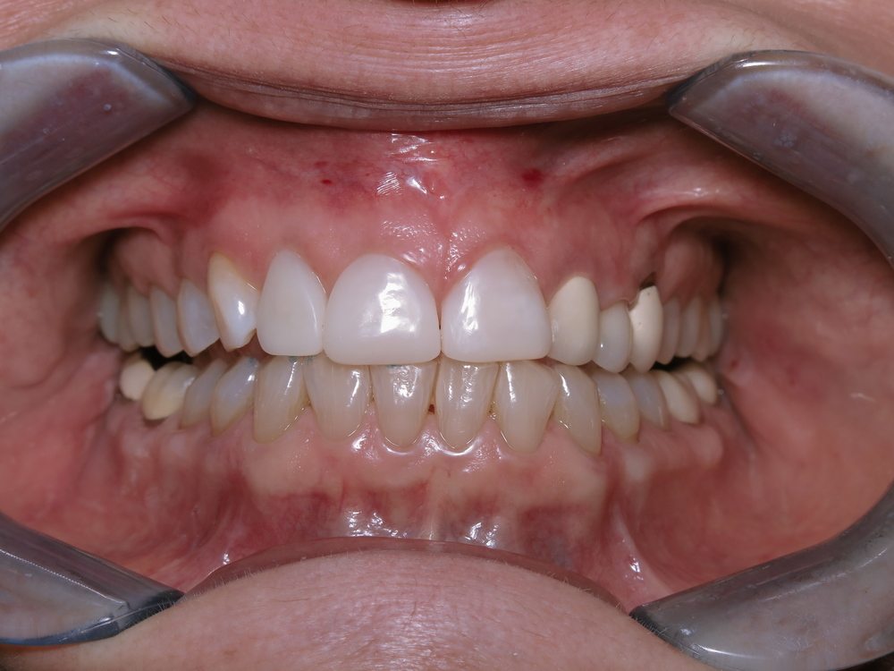 after COSMETIC COMPOSITE VENEERS
