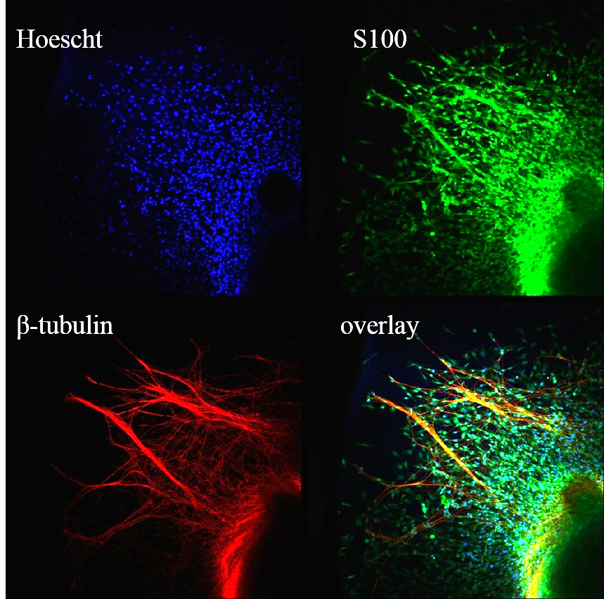 Immunostaining of neural outgrowth into a hydrogel.  Blue: cell nuclei, Green: Schwann cells, Red: neurons