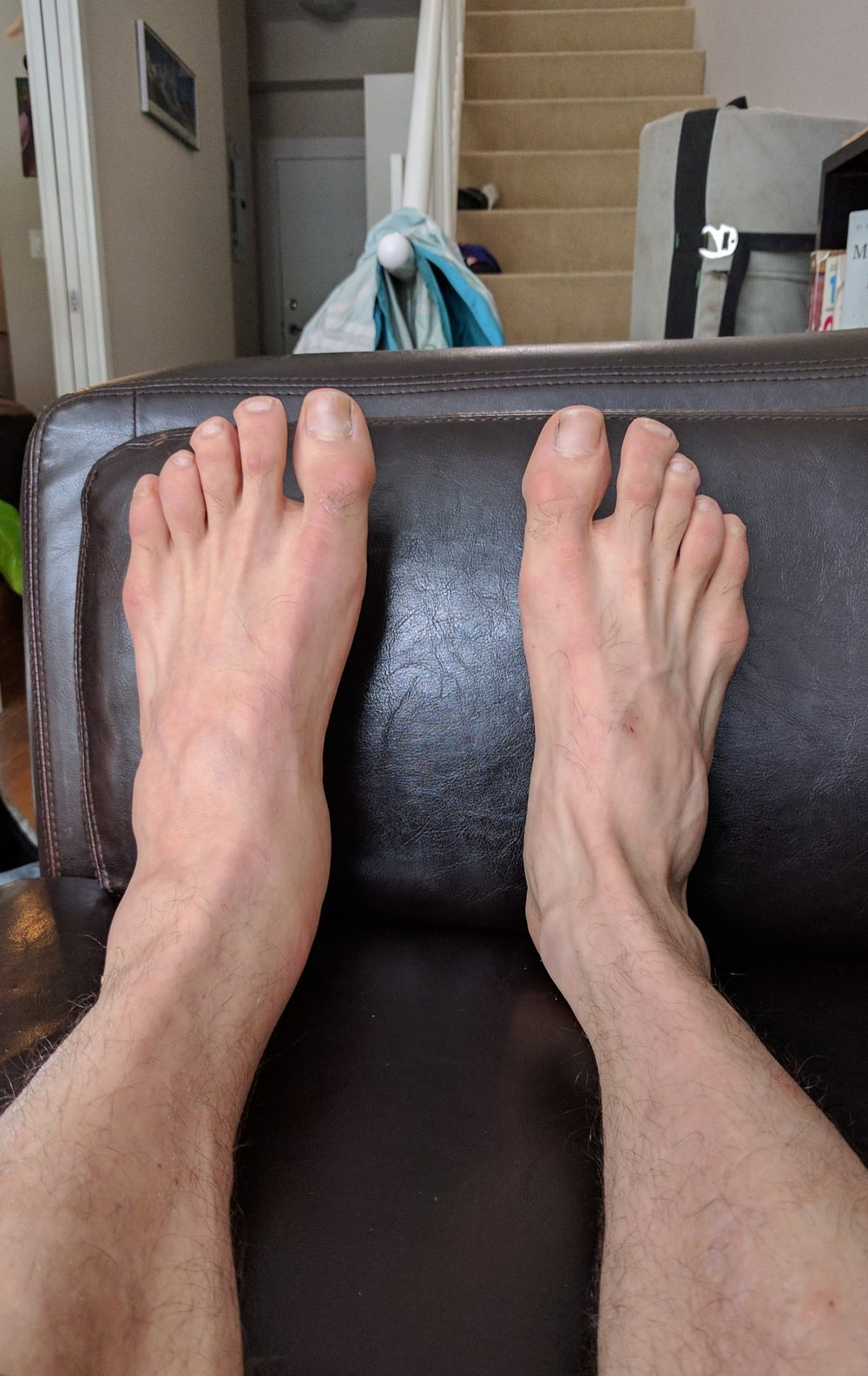 Swollen ankle