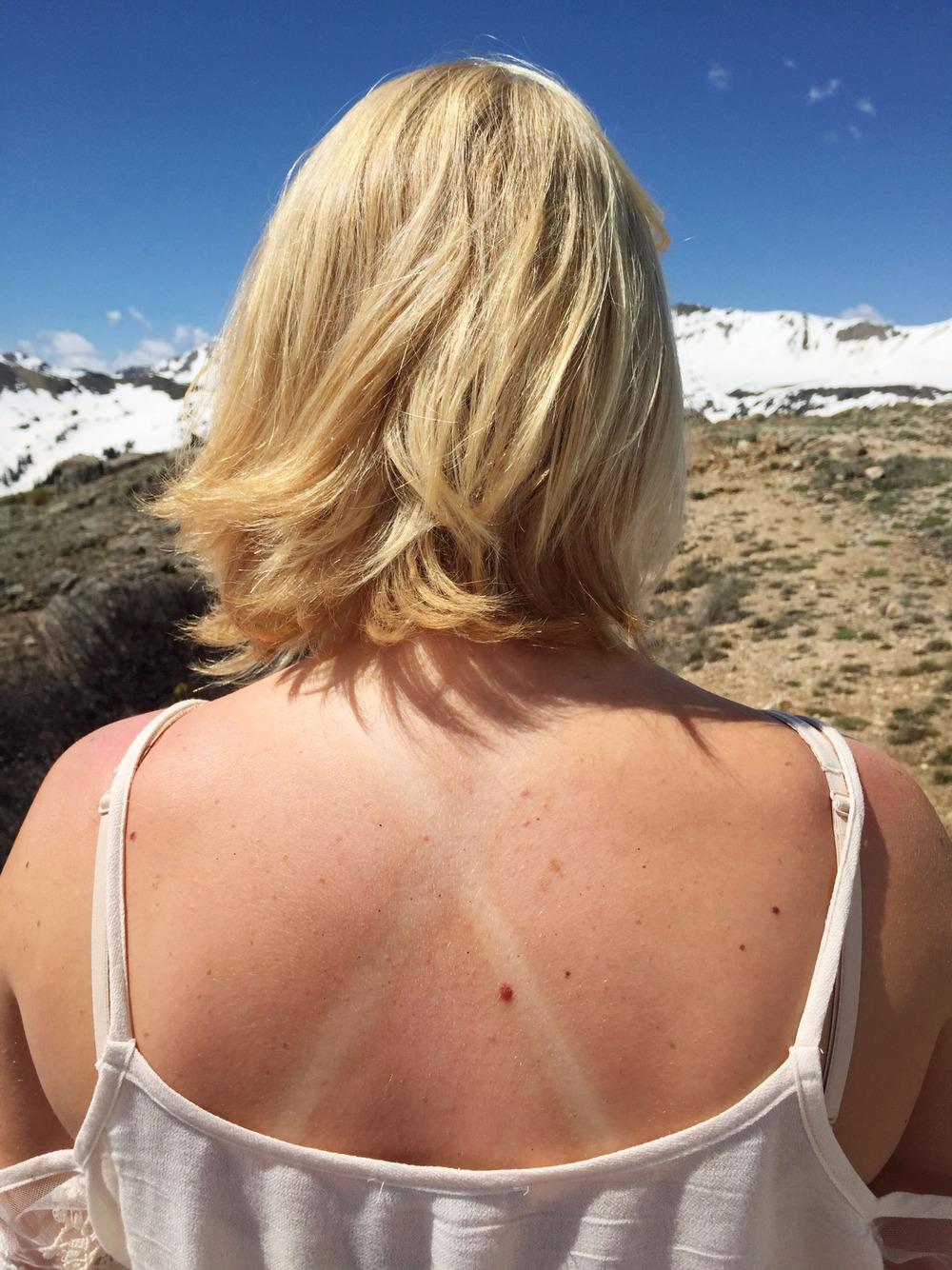 Myca's Sunburn 2015   amandamollindo.com